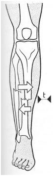 Aquel fractures déplacements correspond ce dessin