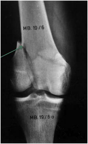 De quel type de fractures s'agit-il