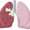 Poumons cancer
